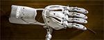 La prothèse de main 3D à petit prix